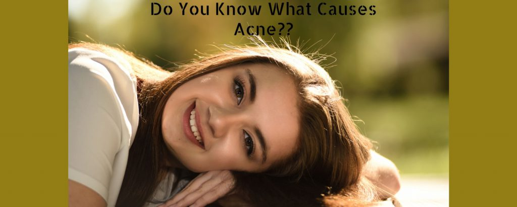 Acne Causes and Cure