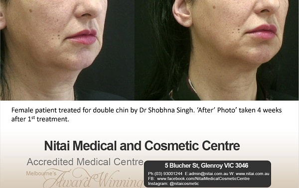 Double Chin Treatment Images
