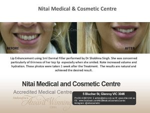 Lips Before After | Nitai Skin Clinic