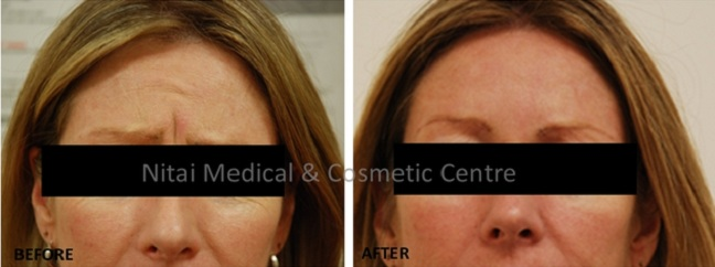 Frown Wrinkles Lines Treatment