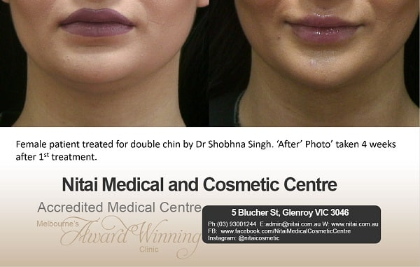 double chin treatment in Melbourne