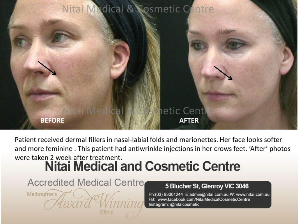 Anti Wrinkle Injections Melbourne - Nitai Cosmetic