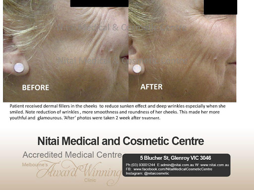 Dermal Fillers for Cheeks before after - Nitai Cosmetic