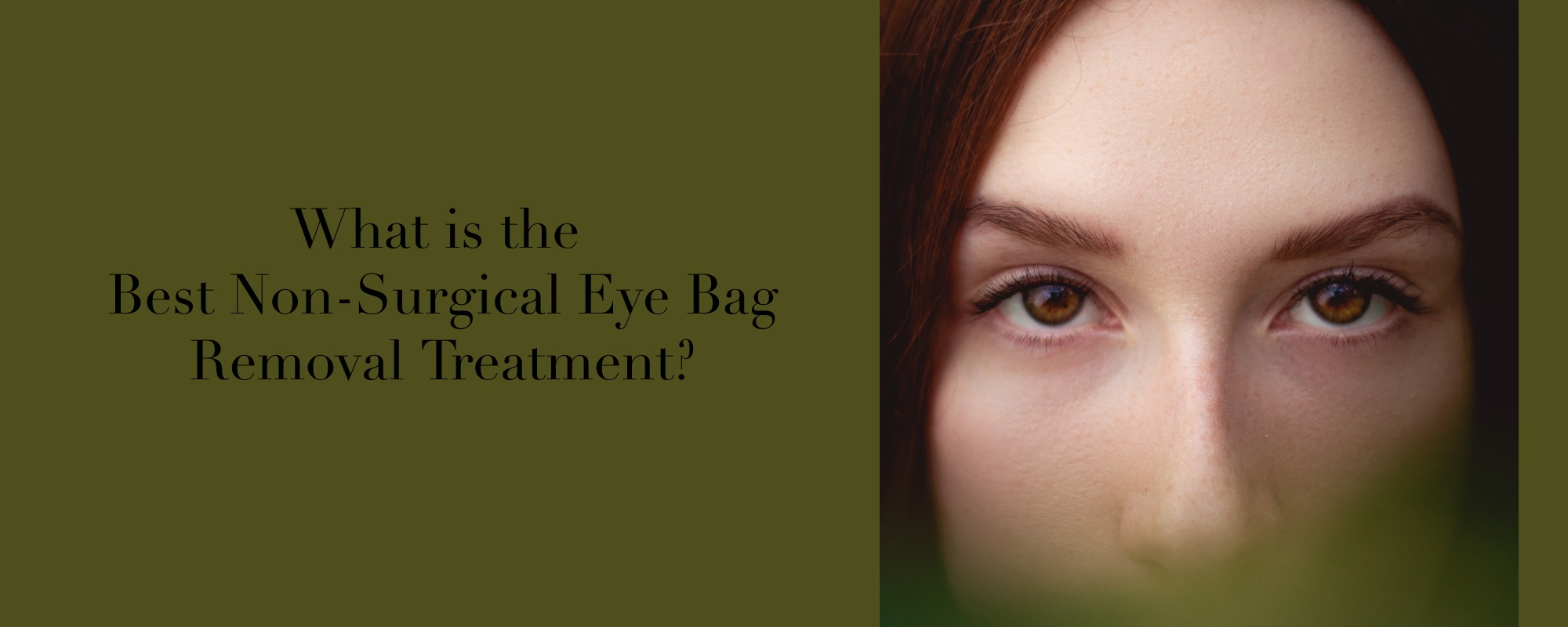 Eye bag removal treatment in Melbourne