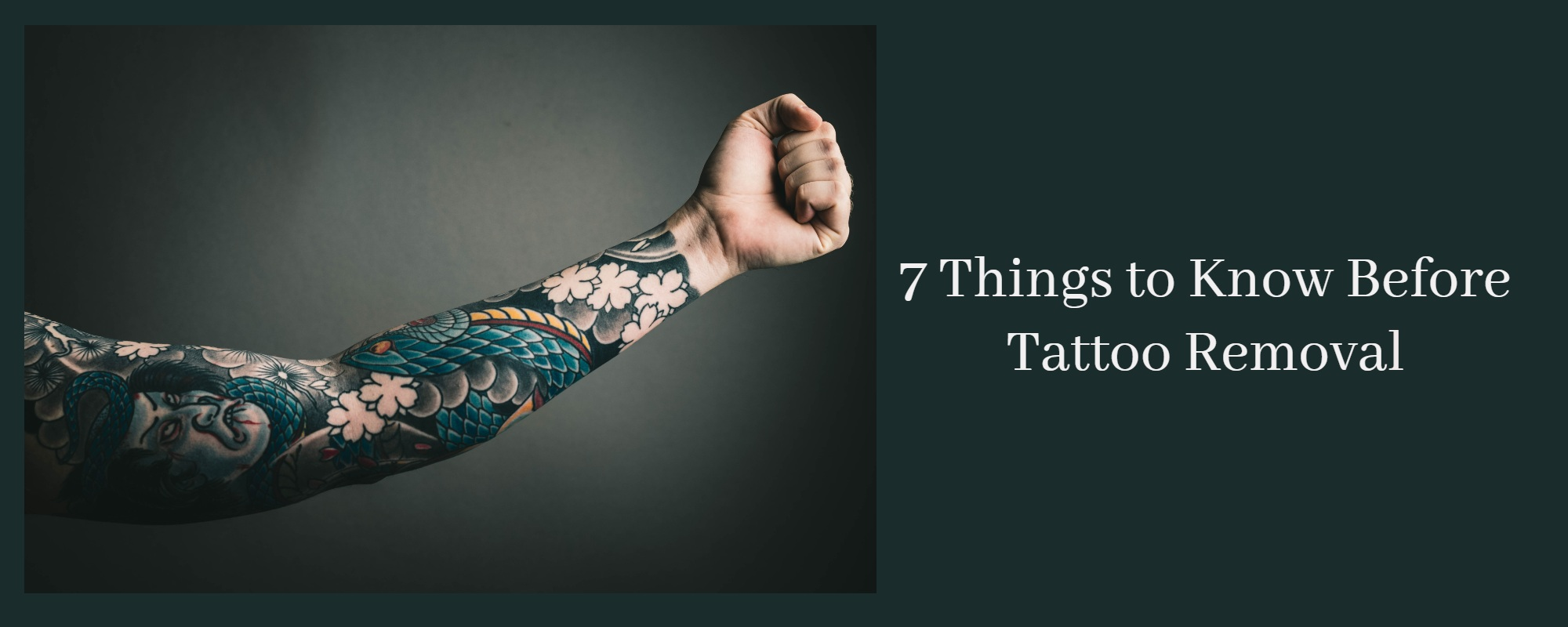 Things to Know About Tattoo Removal