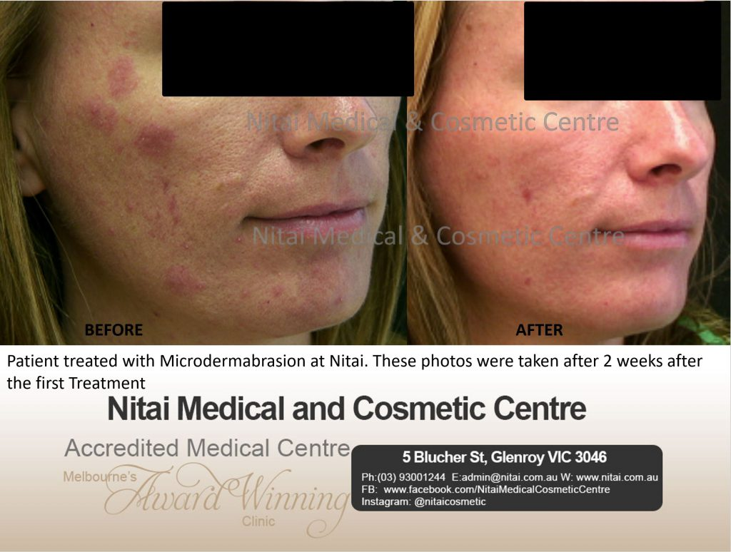 Microdermabrsion Treatment